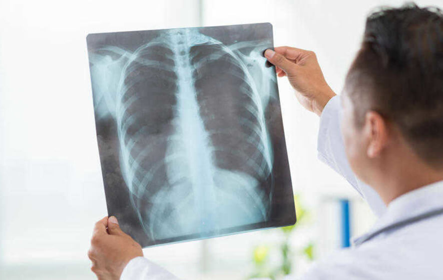 Sample Nursing Case Study About Pneumonia