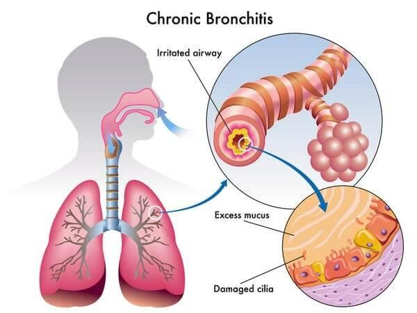 Chronic Bronchitis Case Study
